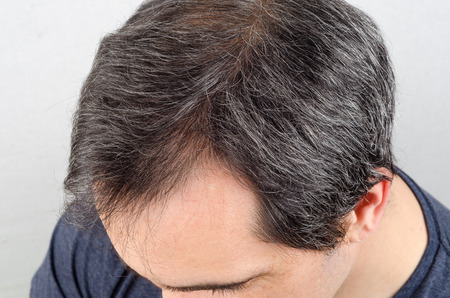 concep: Mature man hair loss problem. health care shampoo and beauty product concep Stock Photo