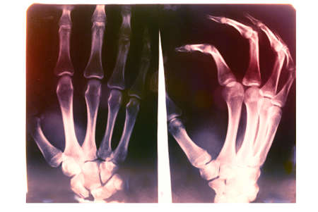 X-ray card of human's hand on a white background. Stock Photo - 13387798