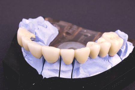 Dental bridge at laboratory - object Stock Photo - 2039362