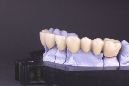 Dental bridge at laboratory - object  photo