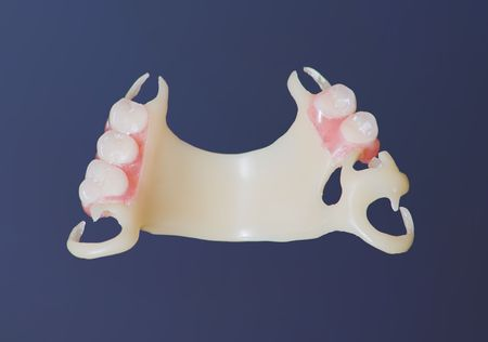 outpatient: partial, acetal denture at labolatory