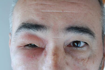 Face of middle aged man with swollen eye from the sting of the wasp, visible necrosis around the injection site, close up