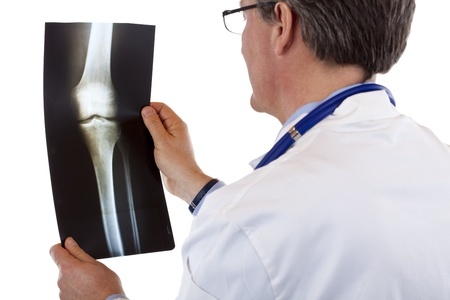 Back view of a doctor studying knee x-ray.Isolated on white background. photo