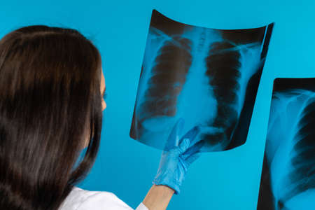 The pulmonologist checks the patient's lungs for any disturbing changes. Stock Photo