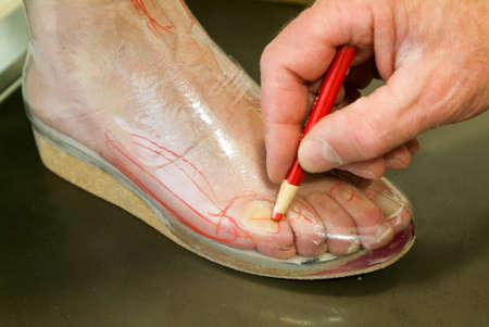 flatfoot: Doctor preparing orthopedic insoles for a patient on his studio