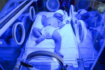インキュベーターで紫外光下で黄疸の治療を有する新生児 写真素材