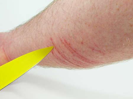 herida: herida Foto de archivo