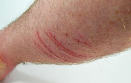 self harm: wound