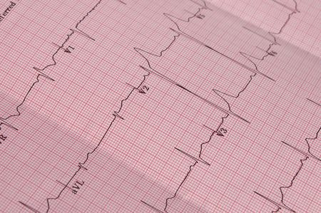 Detail of a real cardiogram plot with focus on the V1, V2 and V3 electrodes placements. Stock Photo - 6997634