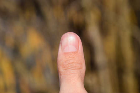 Forked nail on the thumb. Dilation of the nail, traumatic pathology. The nail is divided in half. Stock Photo