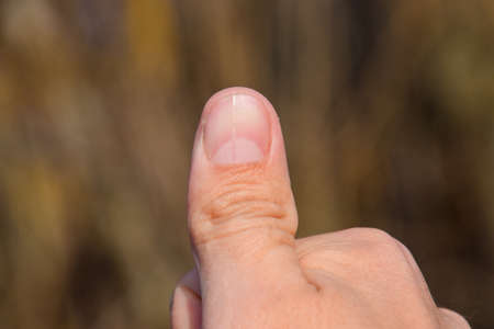 forked: Forked nail on the thumb. Dilation of the nail, traumatic pathology. The nail is divided in half. Stock Photo