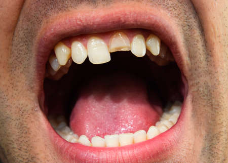 Broken tooth. Broken upper incisor in a man mouth. Man shows oral cavity to the dentist. Treatment of a broken tooth. 版權商用圖片
