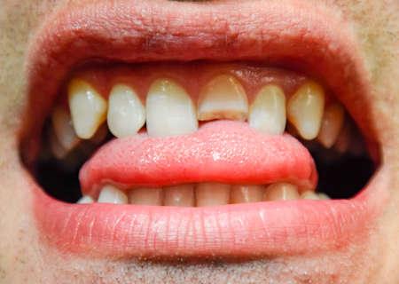 Broken tooth. Broken upper incisor in a man mouth. Man shows oral cavity to the dentist. Treatment of a broken tooth. Foto de archivo