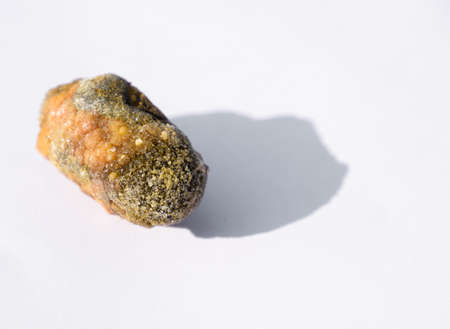 Stone of the gallbladder. The result of gallstones. A calculus of heterogeneous composition. Stock Photo