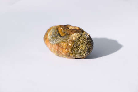 Stone of the gallbladder. The result of gallstones. A calculus of heterogeneous composition.