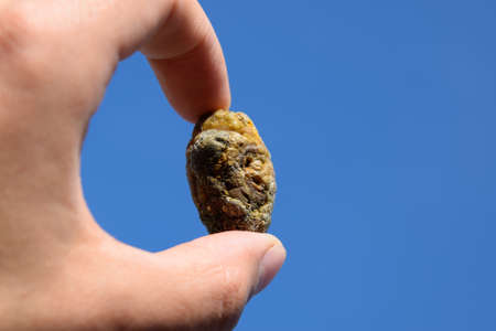 Stone of the gallbladder. The result of gallstones. A calculus of heterogeneous composition against a blue sky.