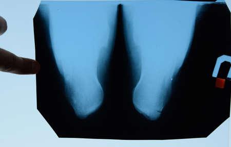 X-ray of feet and heel bones. X-ray picture of bones. Stockfoto - 128054136