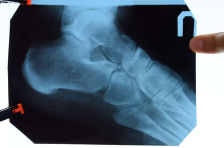 X-ray of feet and heel bones. X-ray picture of bones. Stockfoto - 128054152