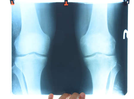 X-ray of the knee joints, a picture of the bones of the knee on the x-ray. Stockfoto - 128054157