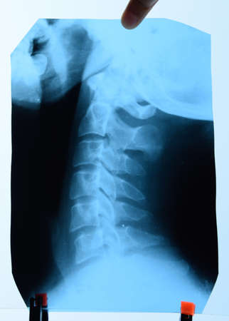 X-ray of the cervical vertebrae. X-ray image of the cervical spine.