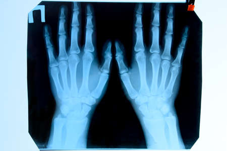 X-ray of the hands, a picture of the bones of the hands on the x-ray.