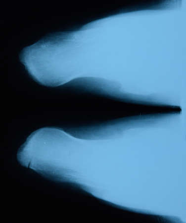 X-ray of feet and heel bones. X-ray picture of bones. Stock Photo