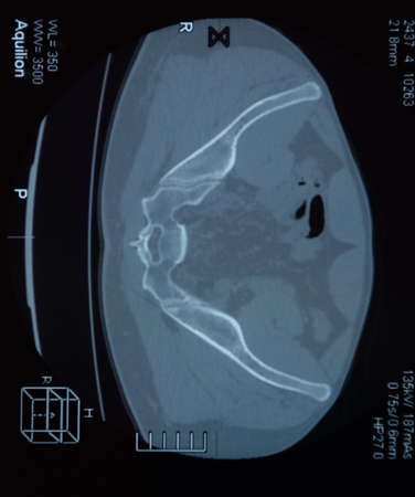 MRI sacroiliac articulation. Study of ankylosing spondyloarthritis patient. The results of the study on the x-ray. 写真素材