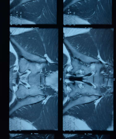 MRI sacroiliac articulation. Study of ankylosing spondyloarthritis patient. The results of the study on the x-ray.