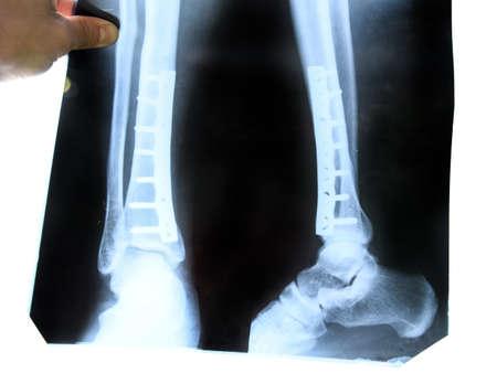 Röntgen des Beins. Eine Stahlplatte, die das Schienbein des Beines zusammenhält.