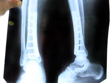 x-ray of the leg. A steel plate holding together the tibia of the leg.