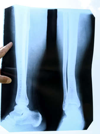 Fused bones of the lower leg after removing the steel bonding plate, x-ray of the leg Stok Fotoğraf