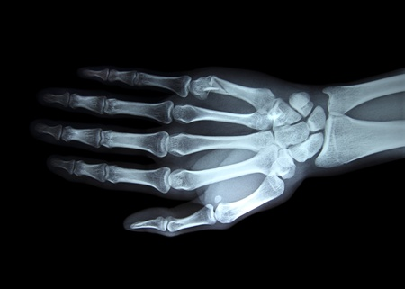 broken wrist: radiograf�a mano derecha Foto de archivo