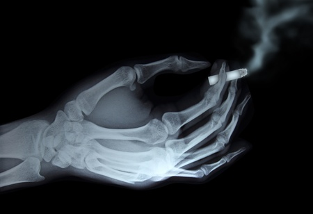 toxic accident: x-ray hand holding cigarette