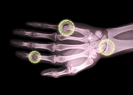 xray: x-ray hand bone with indicator, medical illustration Stock Photo