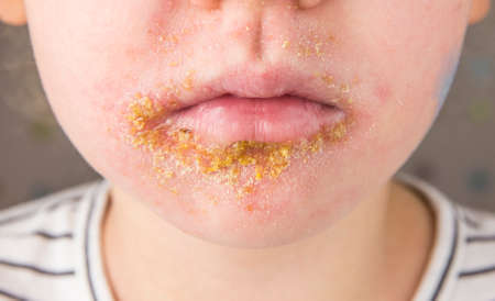 5 year old child with Impetigo (nonbullous impetigo) witch is is a bacterial infection that involves the superficial skin. Yellow scabs on infected area.
