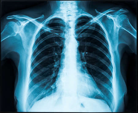 Woman thorax x-ray for lungs examination 스톡 콘텐츠