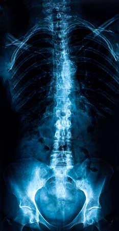 Radiografía de tronco de mujer, examen de columna lumbosacra Foto de archivo