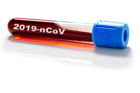 Blood sample, tubes with blood are examined Standard-Bild