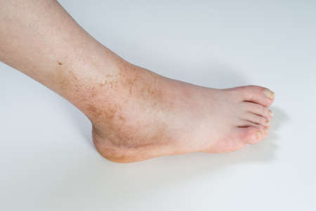 sprained:  ankle sprain isolated on white background.