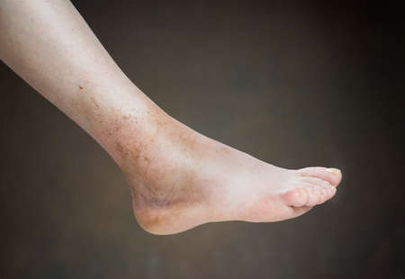 sprain:  ankle sprain isolated on brown background. Stock Photo