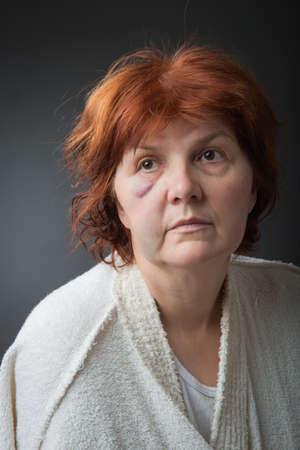 hematoma: Abused woman posing in studio Stock Photo