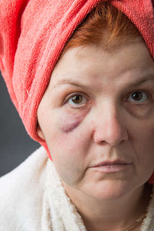 sore eye: Abused woman posing in studio close up