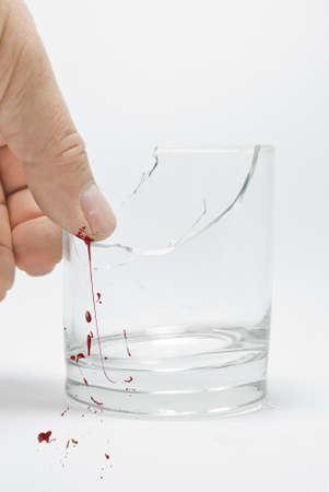 glass broken: dedo herido por vidrios rotos Foto de archivo