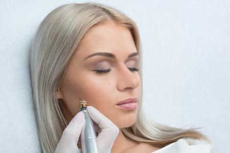 Fibroblast skin care procedure, wrinkle eyelids lifting. Stock Photo