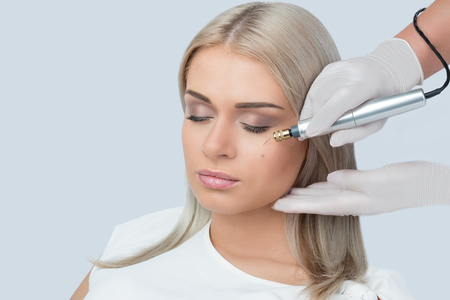 Fibroblast skin care procedure, wrinkle eyelids lifting. Stock Photo