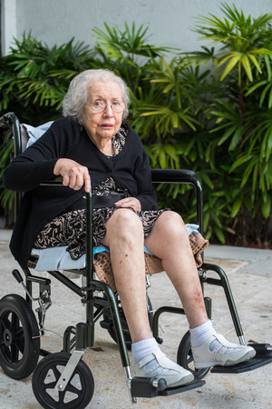 alzheimer: Elderly eighty plus year old handicap woman in a outdoor setting.