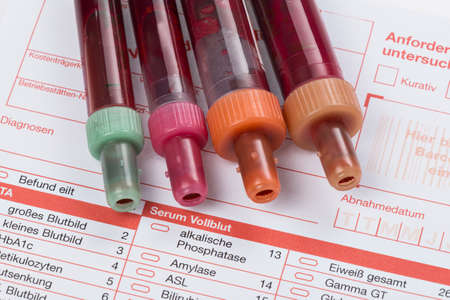 finding out: Blood samples are on a laboratory form for Finding out the blood values Stock Photo