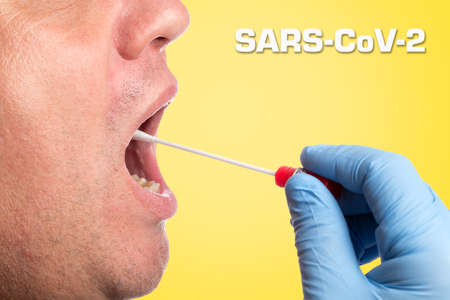 SARS-CoV-2, Covid-19; DNA test tube and cotton swab, wipe test