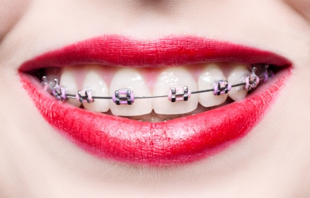 Teeth with braces Stock Photo - 19362059