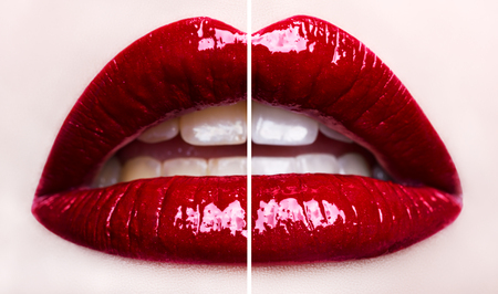 Passionate red lips. Teeth whitening before and after. Macro photography, small depth of field